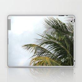 PALMY Laptop & iPad Skin