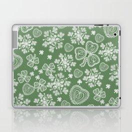 Irish Lace Laptop & iPad Skin