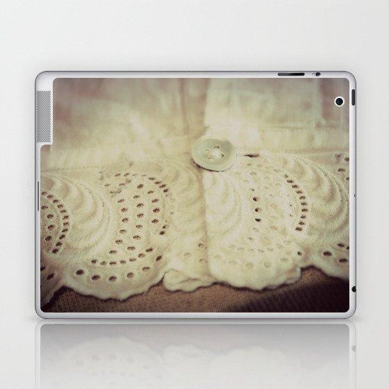 Lace ~ Embroidery  - JUSTART © Laptop & iPad Skin