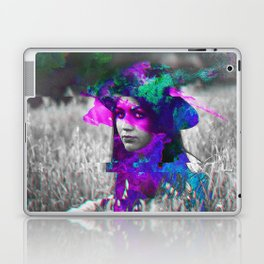 Glen Laptop & iPad Skin