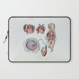 Vintage Anatomy of a Human Infant in Womb Laptop Sleeve