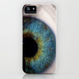 Central Heterochromia Eye iPhone Case