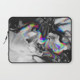 STAR TREATMENT Laptop Sleeve