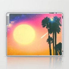 Summer Binge Laptop & iPad Skin