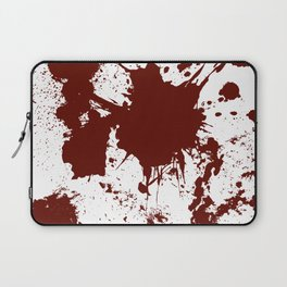 Bloodletting Laptop Sleeve
