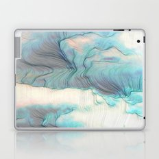 Could We Laptop & iPad Skin