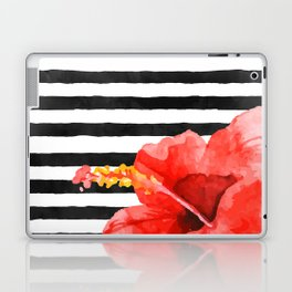 Tropical flower on stripes Laptop & iPad Skin