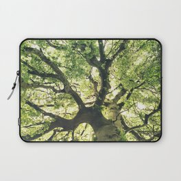 Under Your Skin Laptop Sleeve