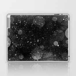 OUTER_____ Laptop & iPad Skin