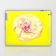Pop Laptop & iPad Skin