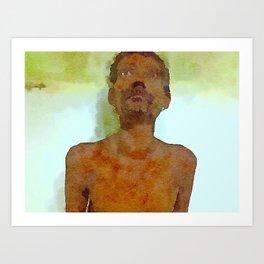 Graves Diseases Art Print