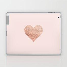 ROSEGOLD HEART BLUSH Laptop & iPad Skin