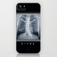 x-ray iPhone (5, 5s) Slim Case