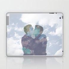 ∞ The Kiss ∞  Laptop & iPad Skin
