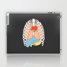 Hugs Keep Us Alive 2 Laptop & iPad Skin