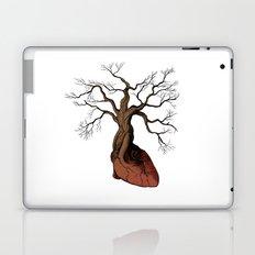 The Love Root Laptop & iPad Skin