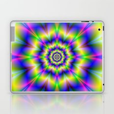 Yellow Octagon Rose Laptop & iPad Skin