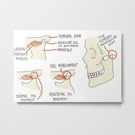 Temporomandibular Joint Metal Print