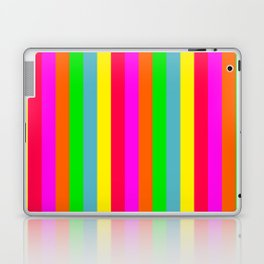 Neon Hawaiian Rainbow Cabana Stripes Laptop & iPad Skin