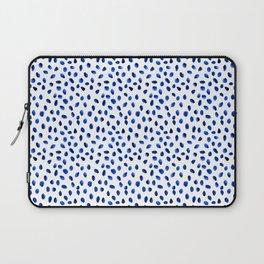 Seeing Blue Spots Laptop Sleeve
