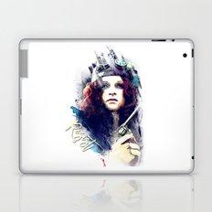 Resist Laptop & iPad Skin