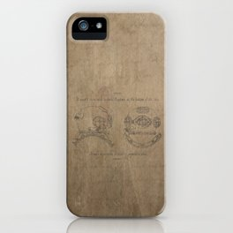 Rapture iPhone Case