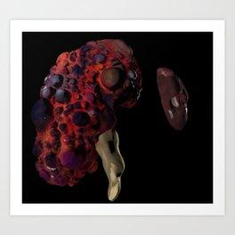 Polycystic Kidney Disease Art Print