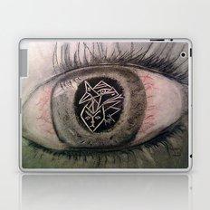 Migraine... Laptop & iPad Skin