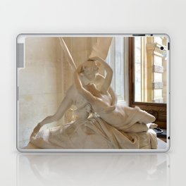 A Kiss is so Complicated Laptop & iPad Skin