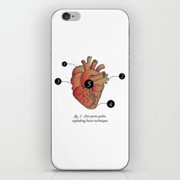 Five Point Palm Exploding Heart Technique iPhone Skin