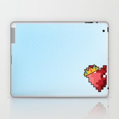 Royal Love  Laptop & iPad Skin