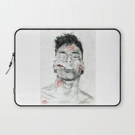 Kiss-Bombed Laptop Sleeve