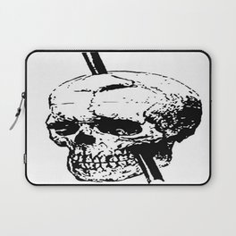 The Skull of Phineas Gage Vintage Illustration Laptop Sleeve