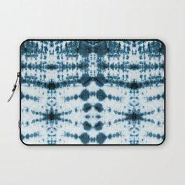 Teal Tribe Shibori Laptop Sleeve