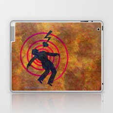 Heartshock Laptop & iPad Skin