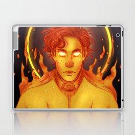 Sunburn Laptop & iPad Skin