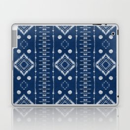 "Shibori Style ""Ladder"" Laptop & iPad Skin"