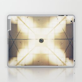 X is up Laptop & iPad Skin