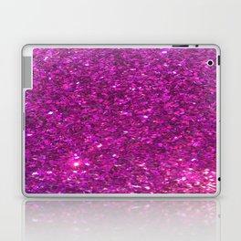 glitter, glitter, glitter Laptop & iPad Skin