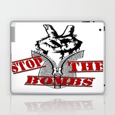 Stop the bombs... Laptop & iPad Skin