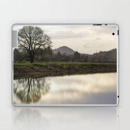 Rainy Day Turnaround Laptop & iPad Skin