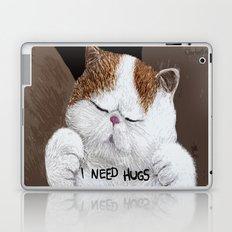 Hugs! Laptop & iPad Skin