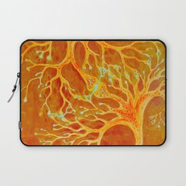 Synapses between a healthey neuron and a neuron with multiple sclerosis Laptop Sleeve