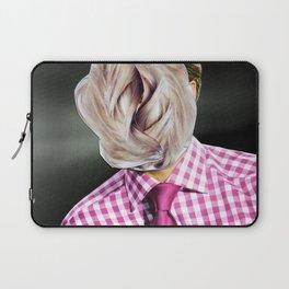 Das neue Haarwuchsmittel wirkt... Laptop Sleeve