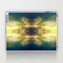 Part6 Laptop & iPad Skin
