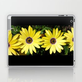 And Pretty Maids All In A Row Laptop & iPad Skin