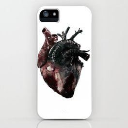 Anatomical Heart - inspired by 5 Seconds of Summer's Jet Black Heart iPhone Case