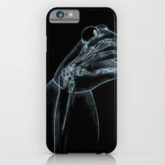 Puppet Check Up iPhone 6s Slim Case