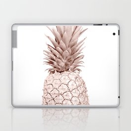 Pineapple Rose Gold Laptop & iPad Skin