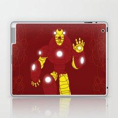 The Metalurgik Laptop & iPad Skin
